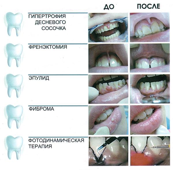 Оголяются корни зубов после удаления